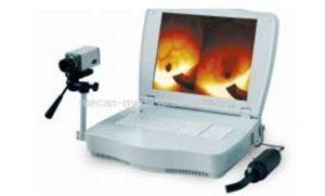 Цифровая инфракрасная Маммография